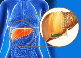 Inmunonutrición e Hígado graso no alcohólico (NASH)