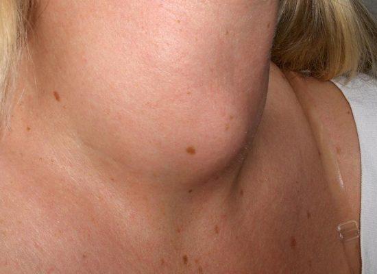 Tiroidismo: Evaluación y tratamiento Nutricional