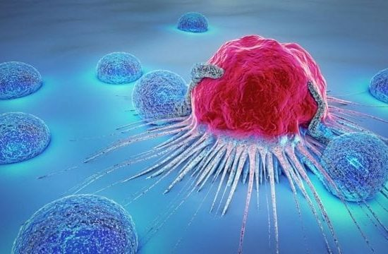 Evaluación y tratamiento nutricional del cáncer